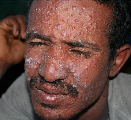 HIV/Aids Complicates Fight Against Kala-azar